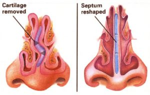 Septoplasty-1